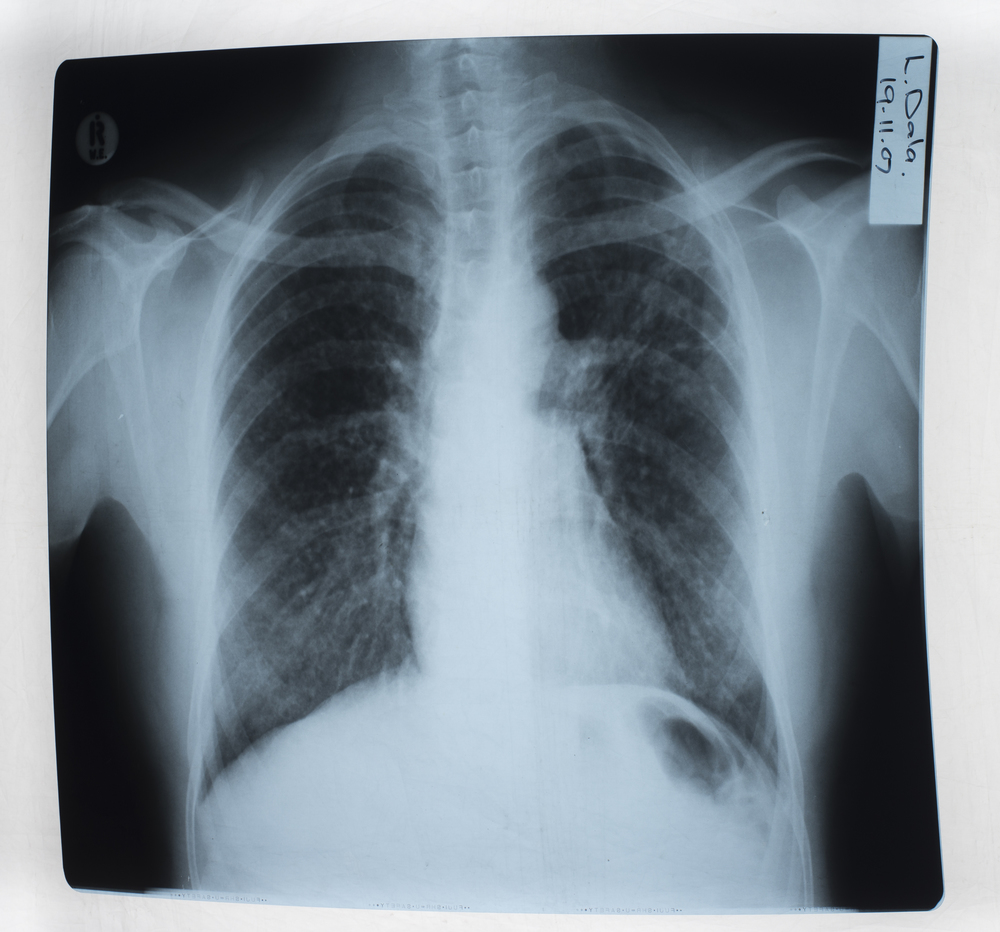 X-Ray of Mr Dala's lungs